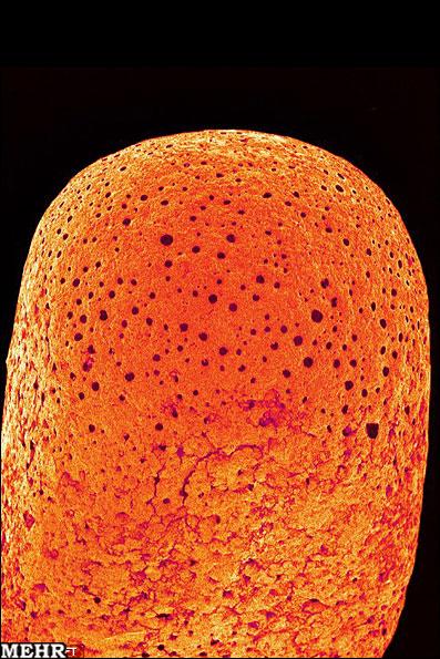 تصاویری فوق العاده دیدنی از عکاسی میکروسکوپی | www.Alamto.Com