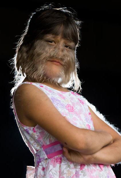 دختر بچه 11 ساله پر مو شبیه به گرگ !! (عکس)