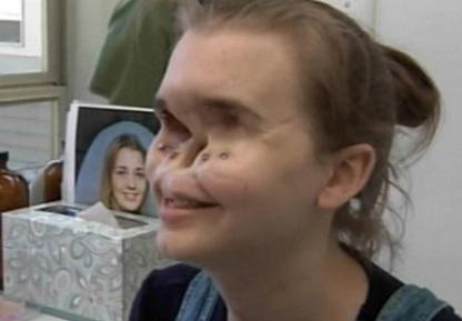 زنی که 11 سال با چهرهای وحشتناک زندگی کرد!