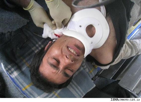 فرو رفتن میلگرد به گردن کارگر در تهران!