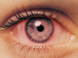 علت قرمزی چشم ها و راه درمان آن