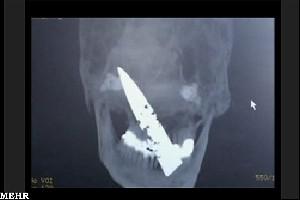 مردی که چهار سال یک چاقو در جمجمه اش بود (+عکس)
