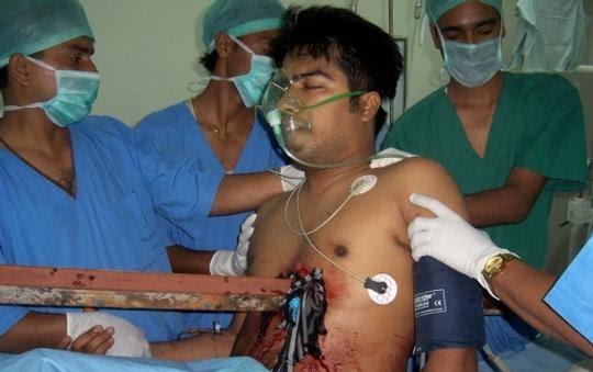 ده معجزه عجیب و باورنکردنی در دنیای پزشکی +عکس | www.Alamto.Com