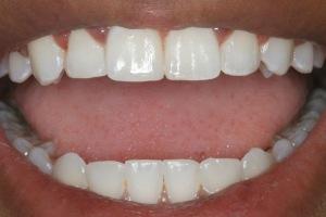 راه حلی ساده برای سفید کردن دندانها