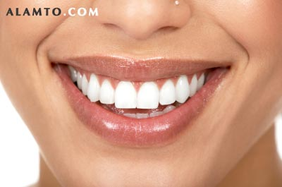 روشهای سفید کننده دندان