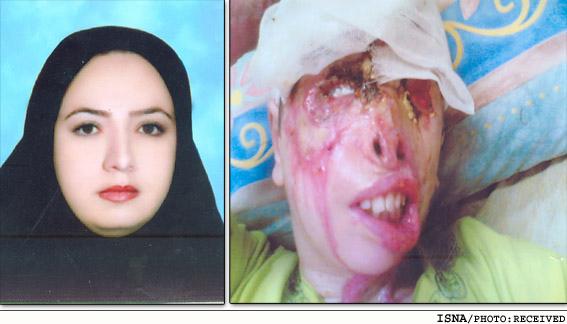 acid01 عکس های دلخراش از یک قربانی دیگر اسید پاشی در ایران+18