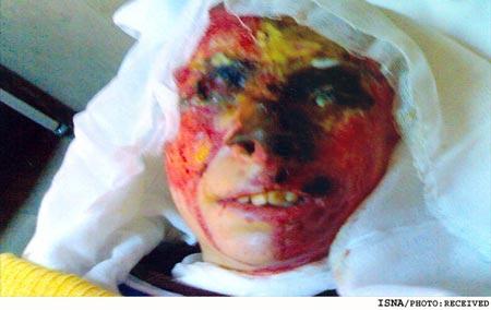 acid02 عکس های دلخراش از یک قربانی دیگر اسید پاشی در ایران+18