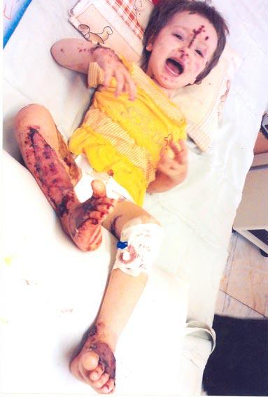 acid03 عکس های دلخراش از یک قربانی دیگر اسید پاشی در ایران+18