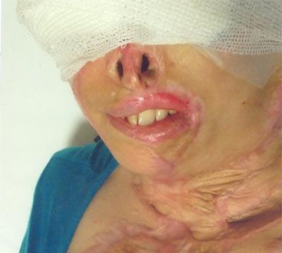 acid04 عکس های دلخراش از یک قربانی دیگر اسید پاشی در ایران+18