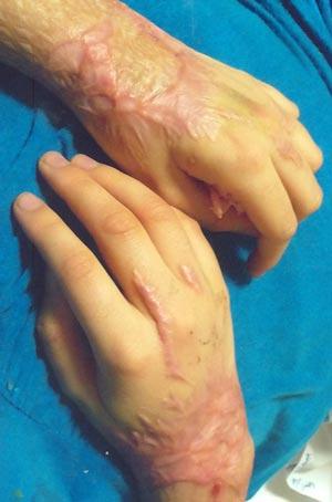 acid05 عکس های دلخراش از یک قربانی دیگر اسید پاشی در ایران+18