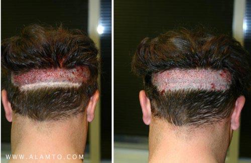 هزینه کاشت مو سر