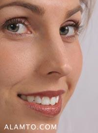 نکات مهم بعد از جراحی زیبایی بینی