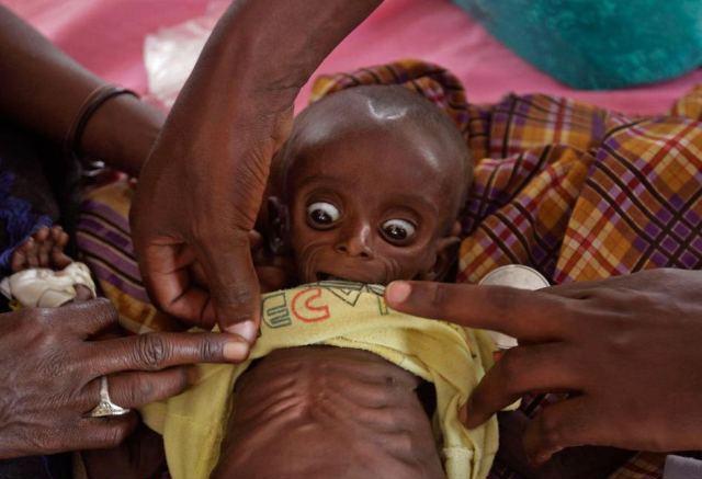 فاجعه در آفریقا ! خشکسالی و قحطی + تصاویر
