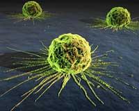 شش گام اساسی در پیشگیری از سرطان